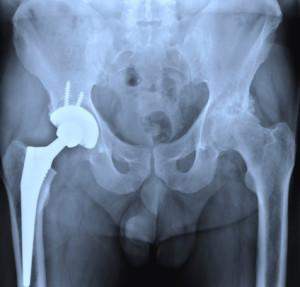 Texas-Zimmer-MoM-hip-implants-injury-lawyer